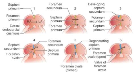 interarterial_septum_formation1341513199392