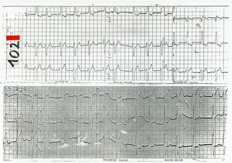 EKG102