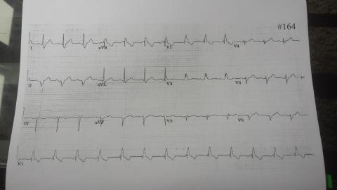 EKG164