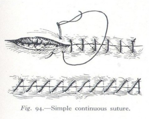 fig-3-simple-continuous-suture-500x400